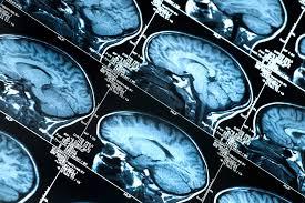 Avoid a Brain Injury